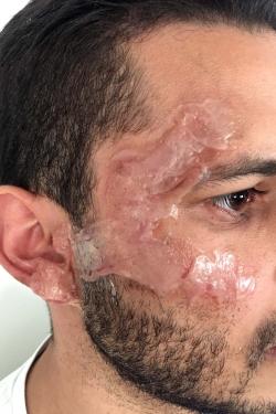 Brpulure second degrès visage