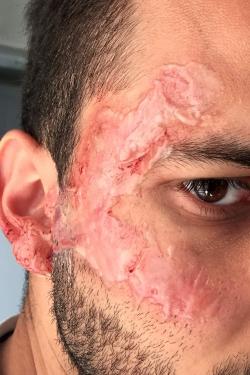 Brpulure second degrès visage sang