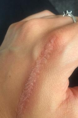 Brulure cicatrice