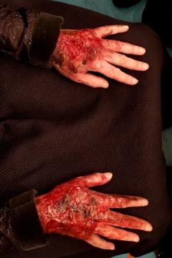 Brulure grave et fraiche mains